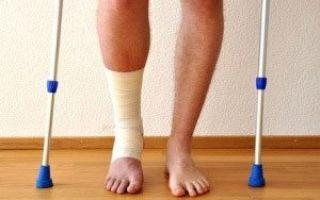Перелом ноги в голеностопе