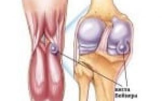 Удаление кисты бейкера коленного сустава