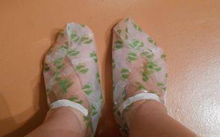 Шпоры на ногах симптомы