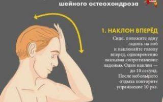 Боли в голове при остеохондрозе