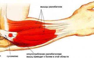 Болит локоть левой руки