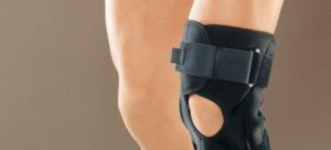 Растяжение связок колена лечение