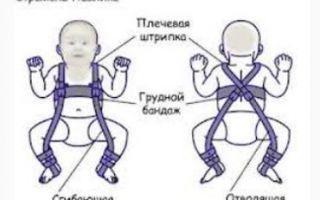 Подвывих тазобедренного сустава у детей