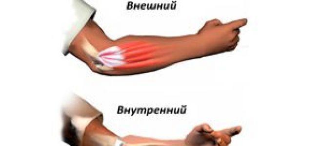 Опухоль в локтевом суставе