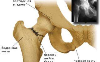 Остеофиты тазобедренного сустава