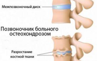 Остеохондроз спины лечение