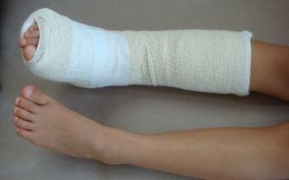 Повреждение голеностопа