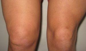 Лечение растяжения связок коленного сустава