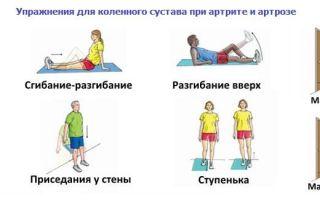 Лечение артрита артроза