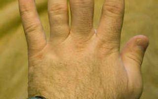 Воспалились суставы на пальцах рук