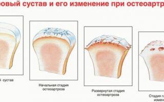 Остеоартроз что это такое