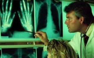 Когда болят суставы пальцев рук