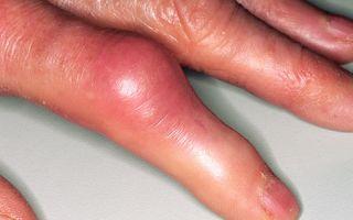 Как облегчить боль при подагре