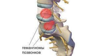 Гемангиома позвоночника лечение