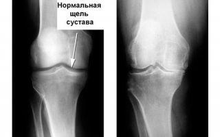 Деформирующий остеоартроз 2 степени