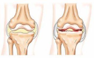 Разрыв коленного сустава