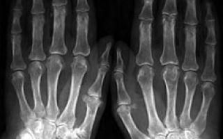 Сужена суставная щель коленного сустава