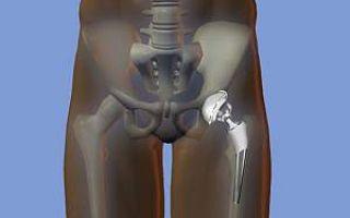 Симптомы болезни тазобедренного сустава