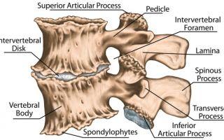 Лечение остеохондроза спины в домашних условиях