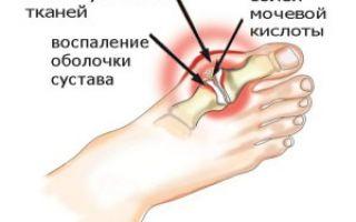 Как лечить подагру народными средствами на ногах