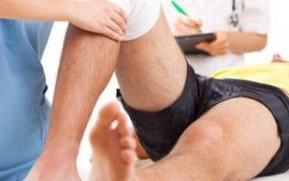 Симптомы разрыва связок коленного сустава