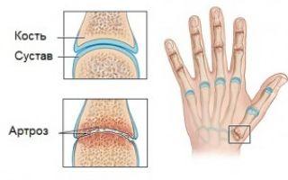 Искривление пальцев