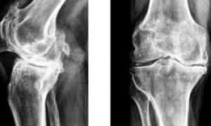 Склероз суставов