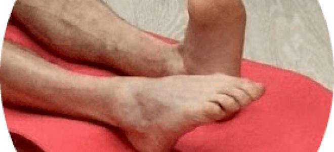 Порваны связки на голеностопе