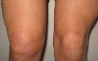 Артроз или артрит разница