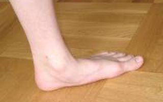 Заболевание суставов ног симптомы