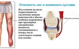 Сильно болит колено чем лечить