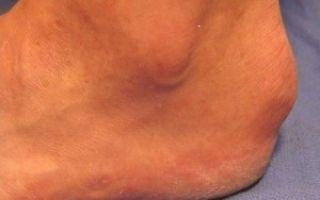 Бурсит пятки симптомы