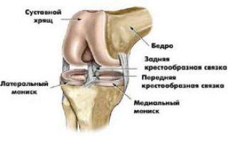 Как называется болезнь суставов
