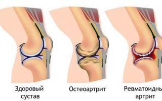 Препараты для лечения артроза тазобедренного сустава