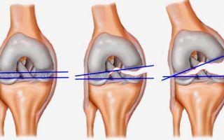Разрыв связок на колене