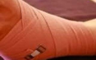 Разрыв мышцы плеча симптомы