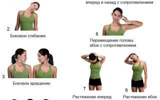 Остеохондроз симптомы шейного отдела