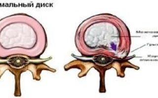 Проявления шейного остеохондроза