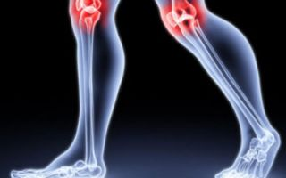 Артроз и артрит. Причины развития