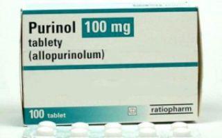 Ибупрофен при подагре
