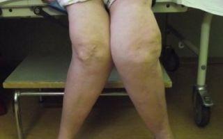Боль в колене при
