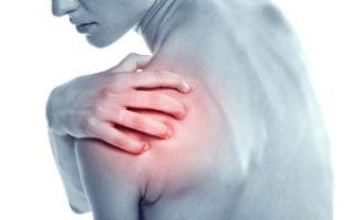 Лопаточно плечевой артроз