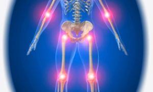Какие физиопроцедуры при артрозе