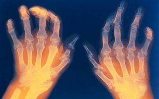 Ревматоидный артрит анализы
