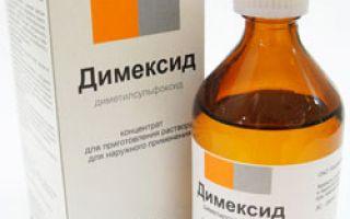 Лечение гнойного бурсита локтевого сустава