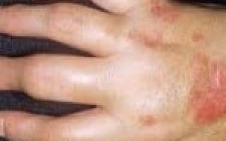 От чего болят пальцы на руках