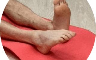 Лечение разрыва связок голеностопного сустава