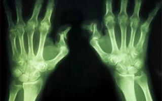 Как лечить артрит суставов