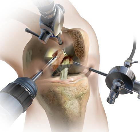 артроскопия коленного сустава операция