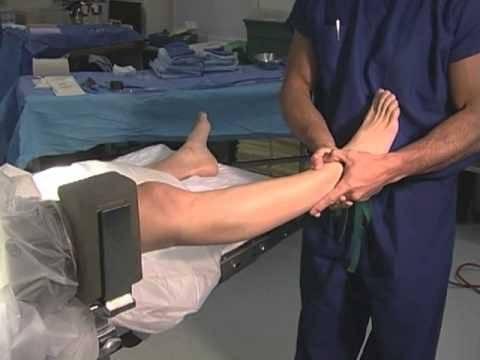 операция артроскопия коленного сустава отзывы